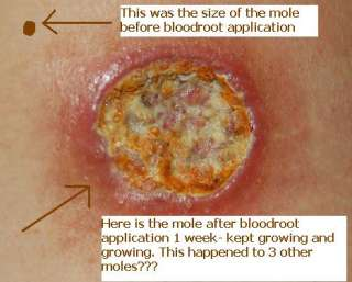 Ingrown Wart On Foot Removal Mole Skin Cvs